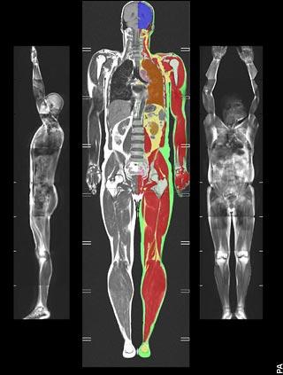 TOFI MRI scan thin outside, fat inside